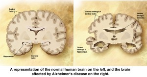 Picture showing the affects of Alzheimer's disease on the human brain