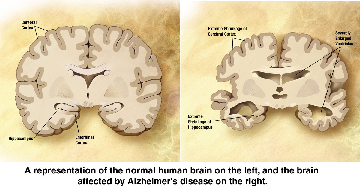 how alzheimers disease affects the brain Alzheimer's disease is a brain disease that worsens over time alzheimers disease facts alzheimer's disease affects mainly people aged 60 years or older.