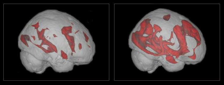 Music and the brain. fMRI image comparing brain activity while reading to activity while surfing the internet.